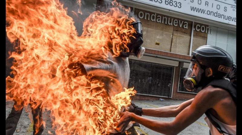 Chiêm bao thấy quần áo cháy làm mình bị bỏng